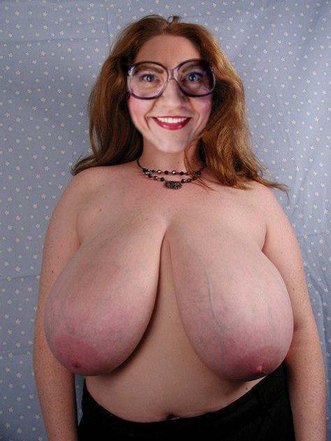 Large pendulous breasts mature women